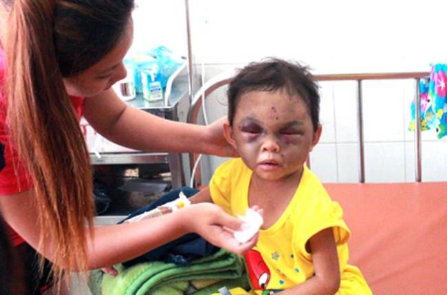 Bạo hành trẻ em vẫn là vấn đề nhức nhối